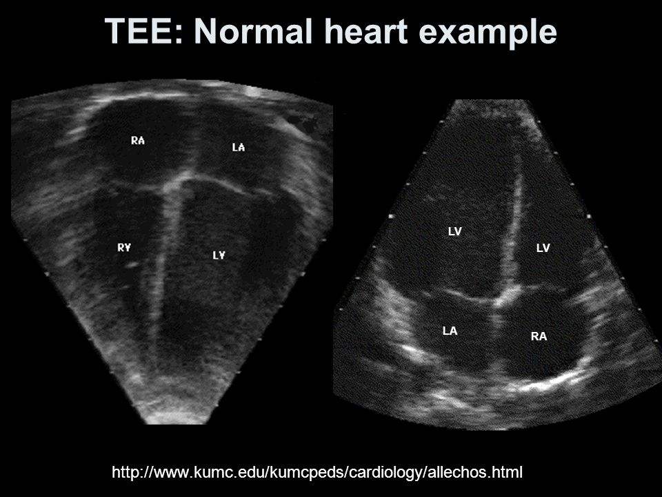 TEE: Normal heart example http://www.kumc.edu/kumcpeds/cardiology/allechos.html LV LA RA LV
