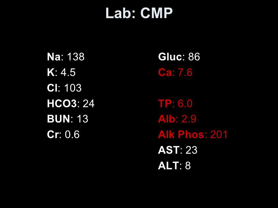 Lab: CMP Na: 138Gluc: 86 K: 4.5Ca: 7.6 Cl: 103 HCO3: 24TP: 6.0 BUN: 13Alb: 2.9 Cr: 0.6Alk Phos: 201 AST: 23 ALT: 8