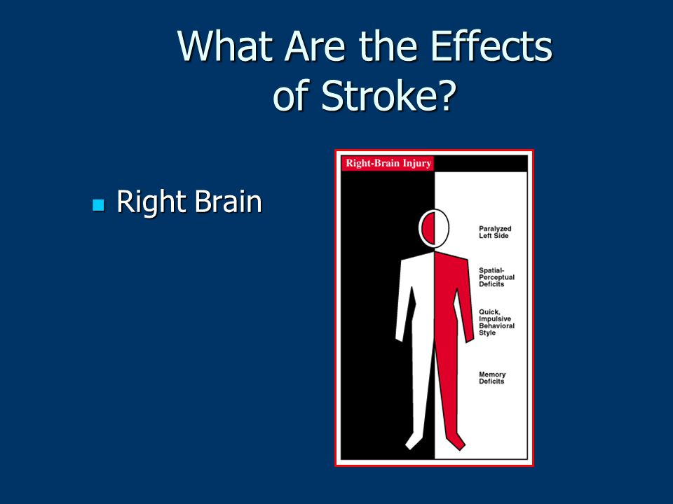 What Are the Effects of Stroke? Right Brain Right Brain