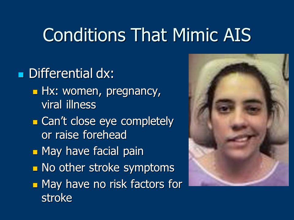 Conditions That Mimic AIS Differential dx: Differential dx: Hx: women, pregnancy, viral illness Hx: women, pregnancy, viral illness Can't close eye co
