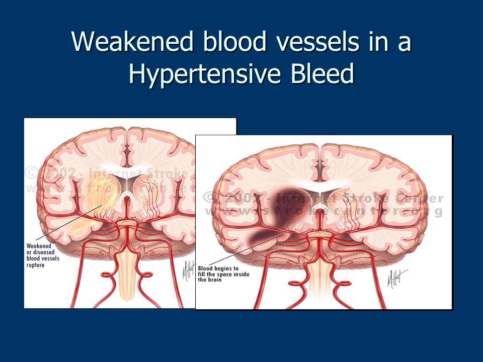 Weakened blood vessels in a Hypertensive Bleed