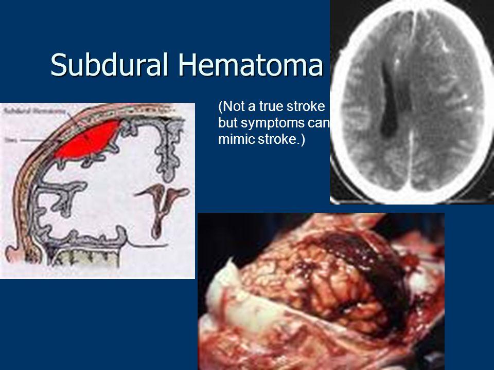 Subdural Hematoma (Not a true stroke but symptoms can mimic stroke.)