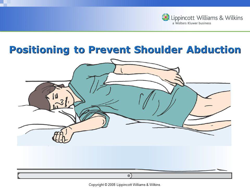 Copyright © 2008 Lippincott Williams & Wilkins. Positioning to Prevent Shoulder Abduction