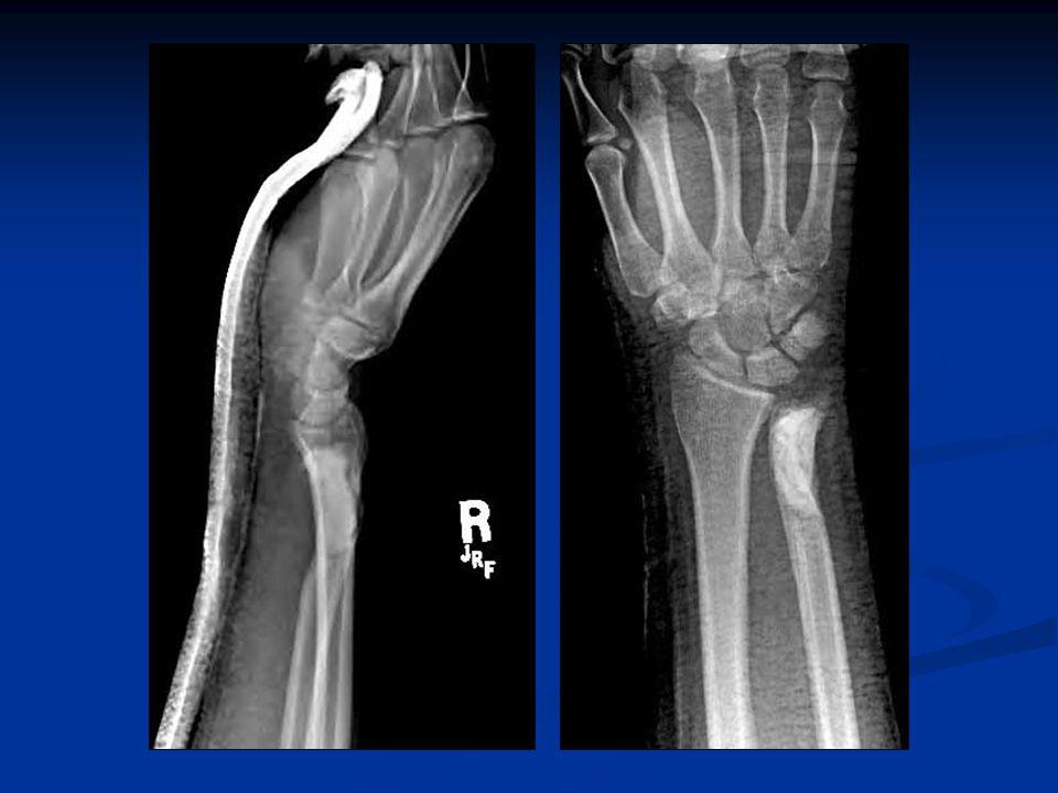 Osteomyelitis   Histology   Mixed cell population   Sequestrum: dead cortical bone   Involucrum: new cortical bone   Treatment   Biopsy/culture   Acute   IV antibiotics ± surgical debridement   Chronic   IV antibiotics with surgical debridement
