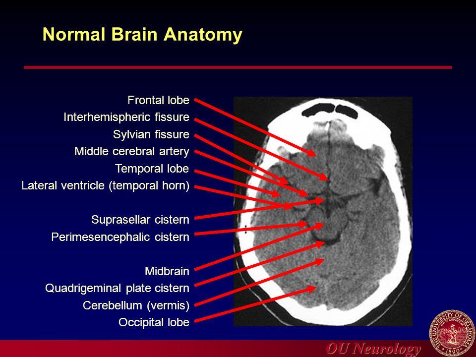 OU Neurology Normal Brain Anatomy Frontal lobe Interhemispheric fissure Sylvian fissure Middle cerebral artery Temporal lobe Lateral ventricle (tempor