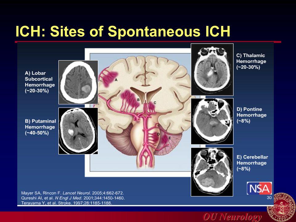 OU Neurology ICH: Sites of Spontaneous ICH
