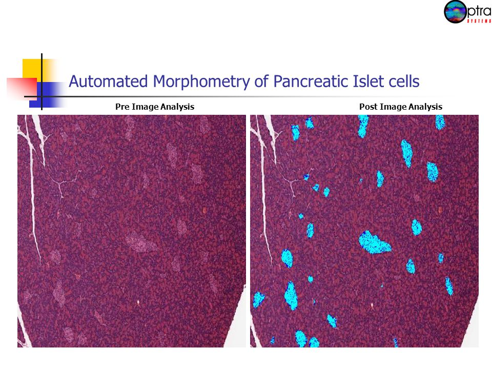 Automated Morphometry of Pancreatic Islet cells Pre Image AnalysisPost Image Analysis
