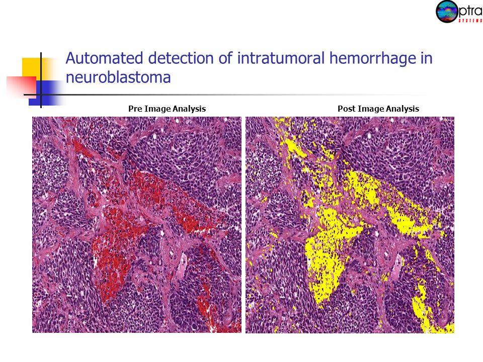 Automated detection of intratumoral hemorrhage in neuroblastoma Pre Image AnalysisPost Image Analysis