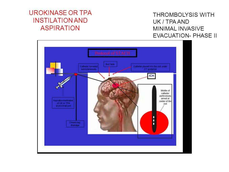 UROKINASE OR TPA INSTILATION AND ASPIRATION THROMBOLYSIS WITH UK / TPA AND MINIMAL INVASIVE EVACUATION- PHASE II