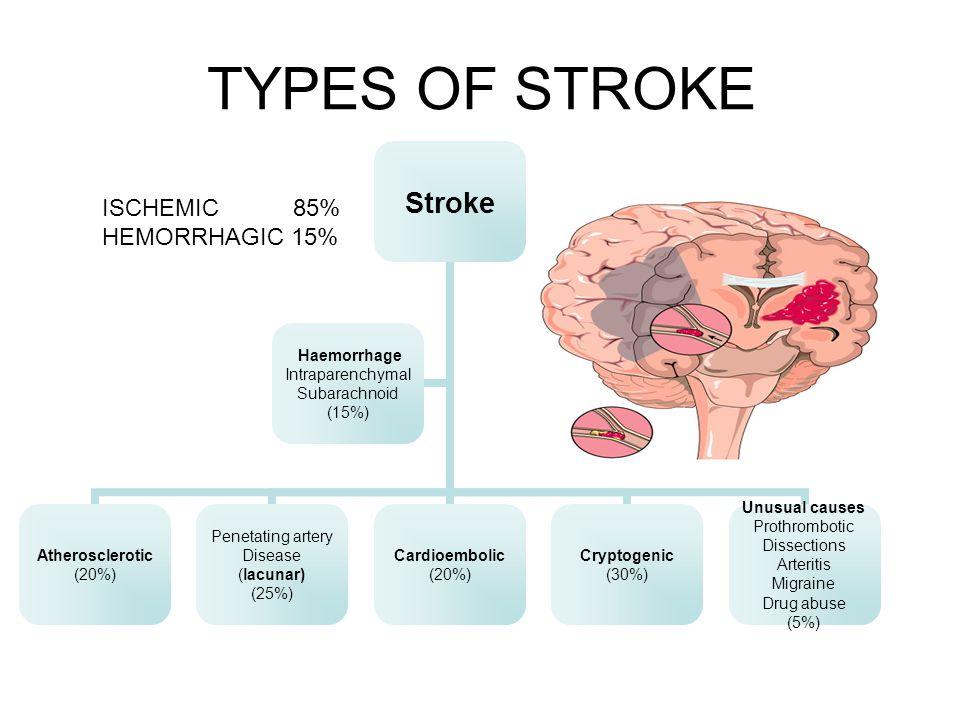 TYPES OF STROKE ISCHEMIC 85% HEMORRHAGIC 15%
