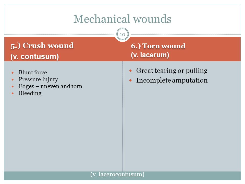5.) Crush wound (v. contusum) 5.) Crush wound (v.