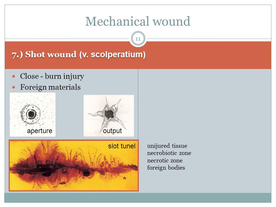 7.) Shot wound (v.