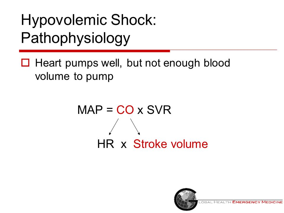 Obstructive Shock: Causes ↓ MAP = ↓ CO (HR x Stroke Volume) x ↑ SVR  Heart is working but there is a block to the outflow Massive pulmonary embolism