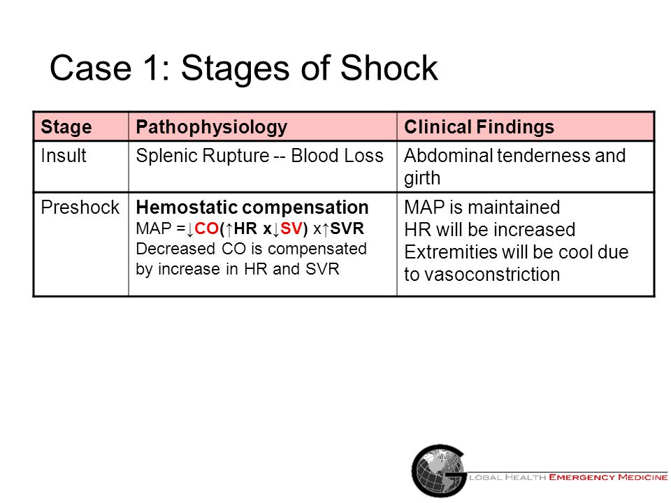 Case 1: Stages of Shock StagePathophysiologyClinical Findings InsultSplenic Rupture -- Blood Loss Abdominal tenderness and girth