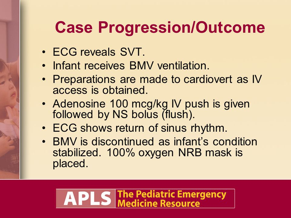 Case Progression/Outcome ECG reveals SVT. Infant receives BMV ventilation. Preparations are made to cardiovert as IV access is obtained. Adenosine 100