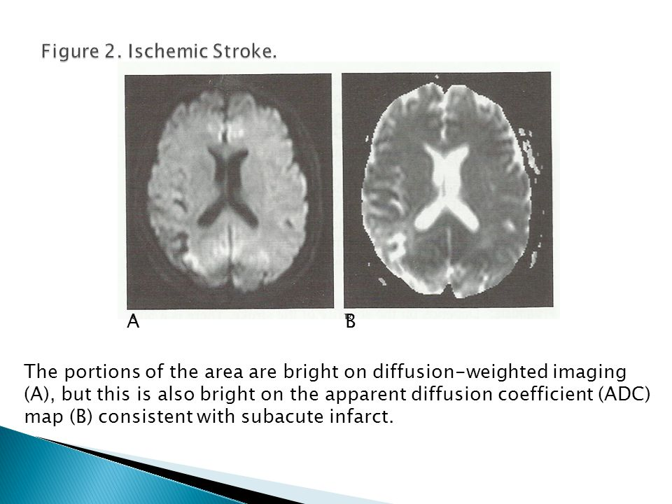 In an acute stroke the diffusion will be bright (A) and the ADC map will be dark (B). AB