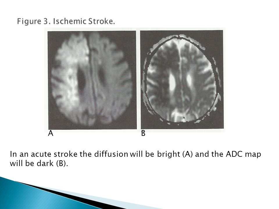 Same patient as in Figure 5 with the left MCA stroke.