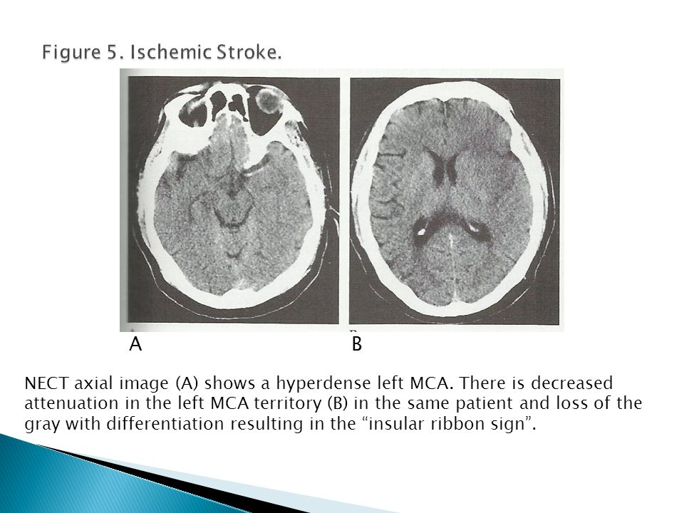 NECT axial image (A) shows a hyperdense left MCA. There is decreased attenuation in the left MCA territory (B) in the same patient and loss of the gra