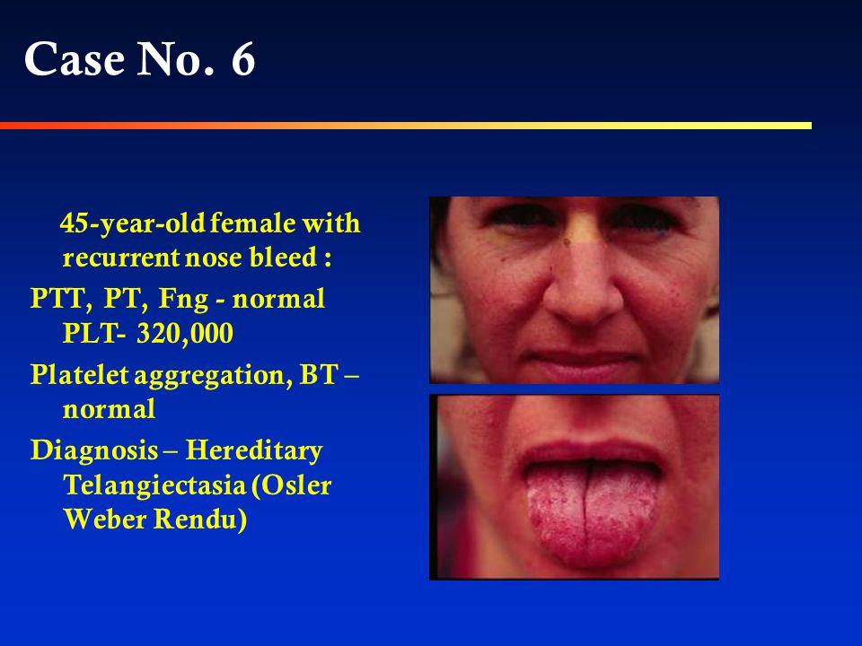 Case 6 מה חשוב לברר אצל התינוק כדי להגיע לאבחנה
