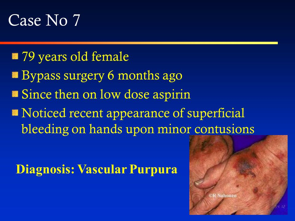 Senile purpura Very common among elderly people Results from loss of peri-vascular fat and connective tissue No treatment