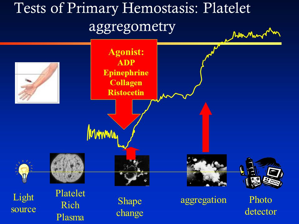 Tests of Primary Hemostasis: Bleeding time