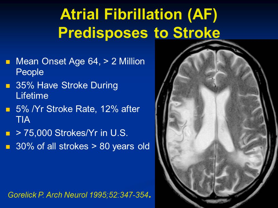 Atrial Fibrillation (AF) Predisposes to Stroke Mean Onset Age 64, > 2 Million People 35% Have Stroke During Lifetime 5% /Yr Stroke Rate, 12% after TIA