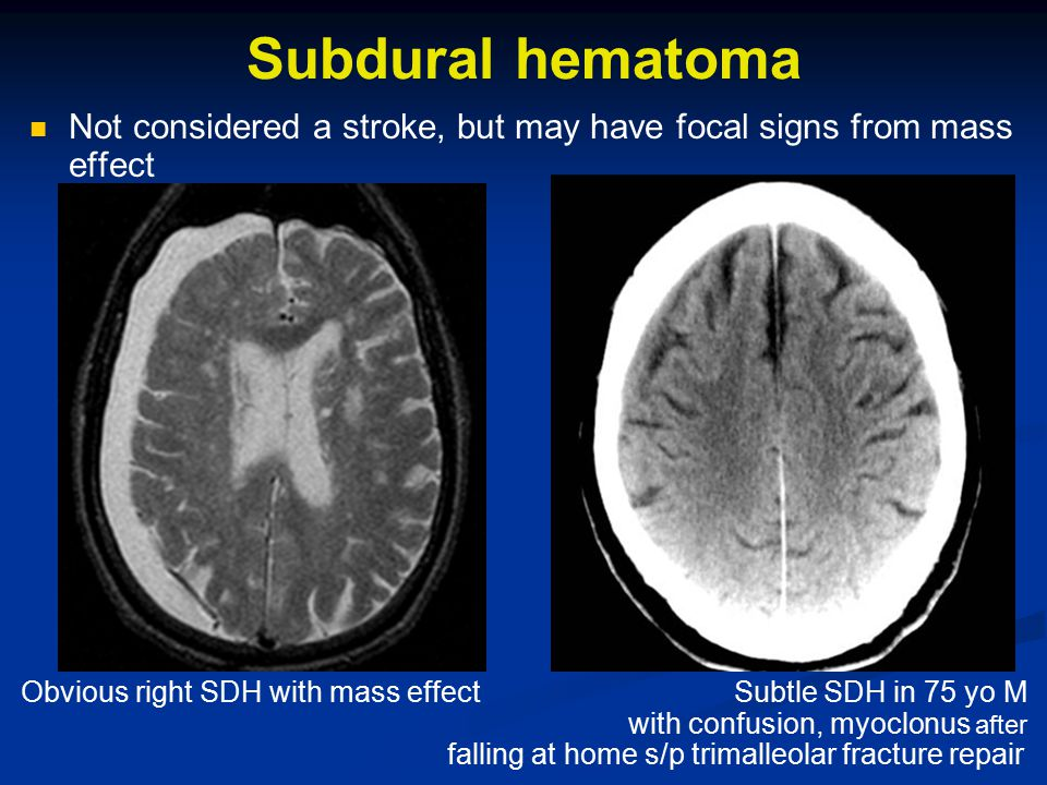 Subdural hematoma Not considered a stroke, but may have focal signs from mass effect Obvious right SDH with mass effect Subtle SDH in 75 yo M with confusion, myoclonus after falling at home s/p trimalleolar fracture repair
