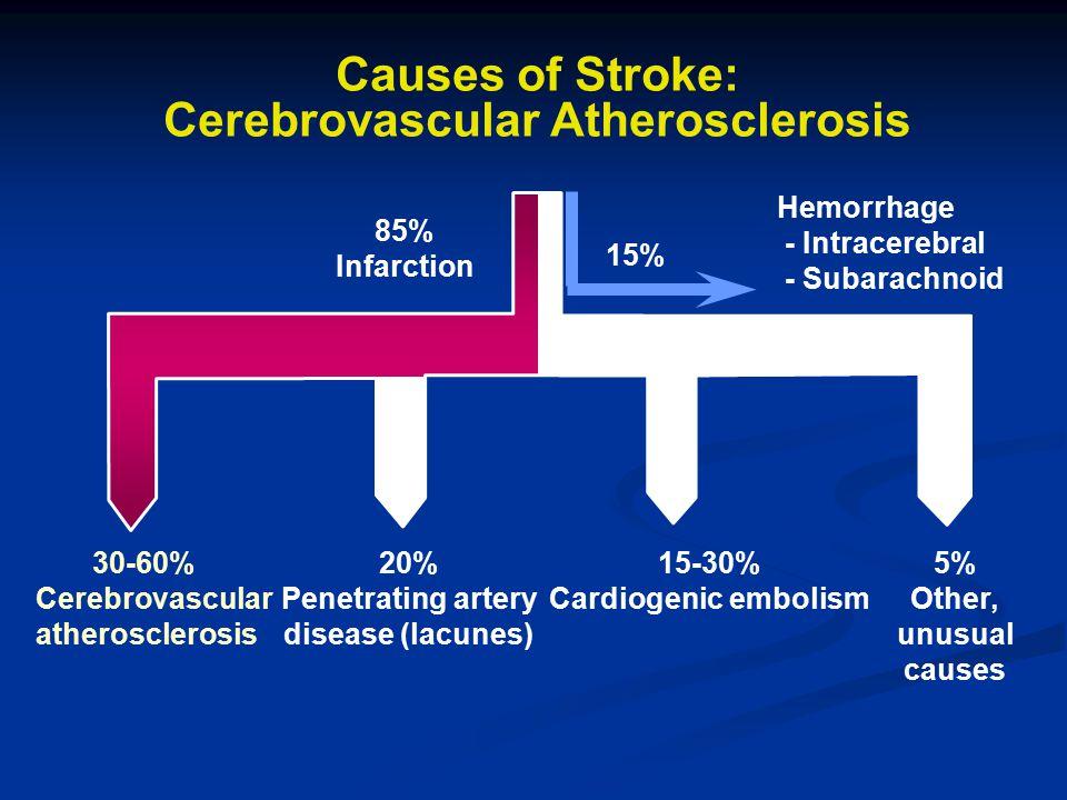 Causes of Stroke: Cerebrovascular Atherosclerosis 85% Infarction 30-60% Cerebrovascular atherosclerosis 20% Penetrating artery disease (lacunes) 15-30