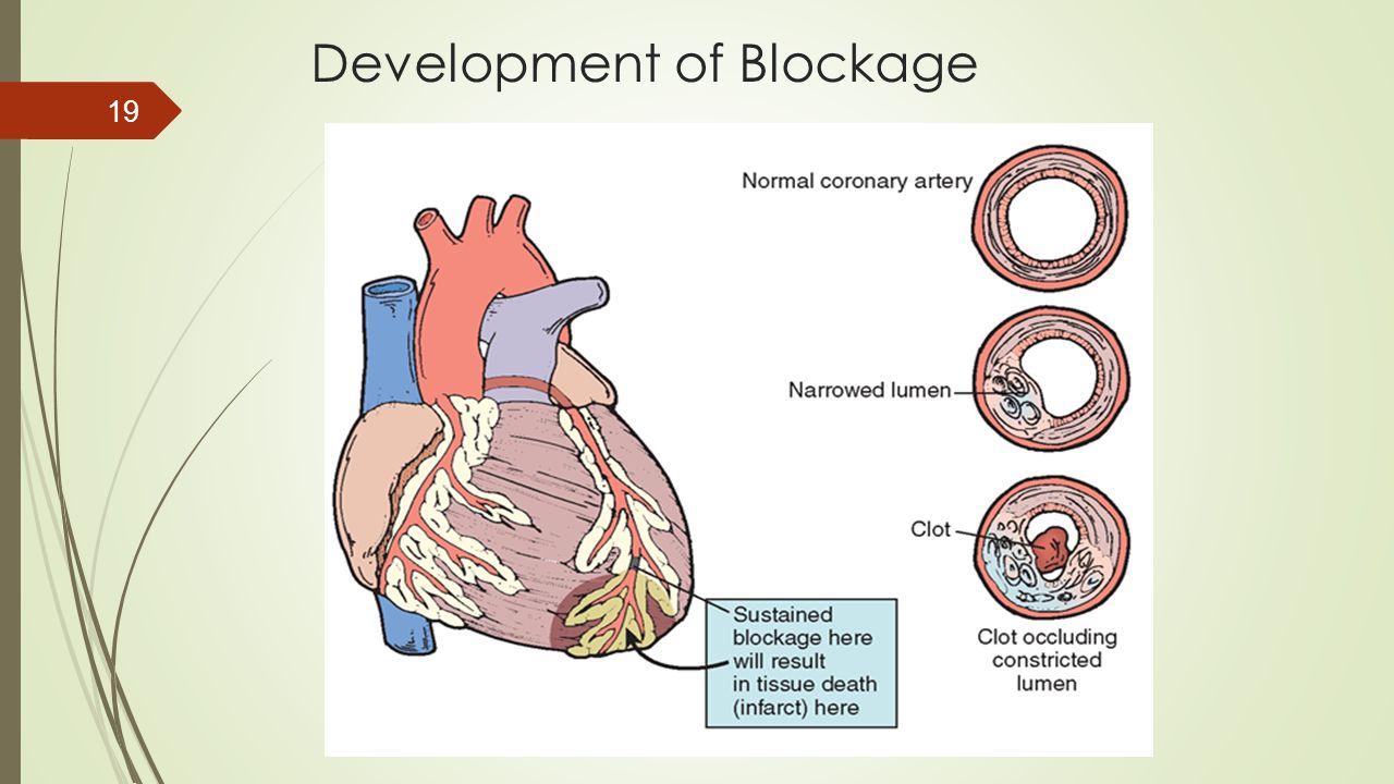 Development of Blockage 19