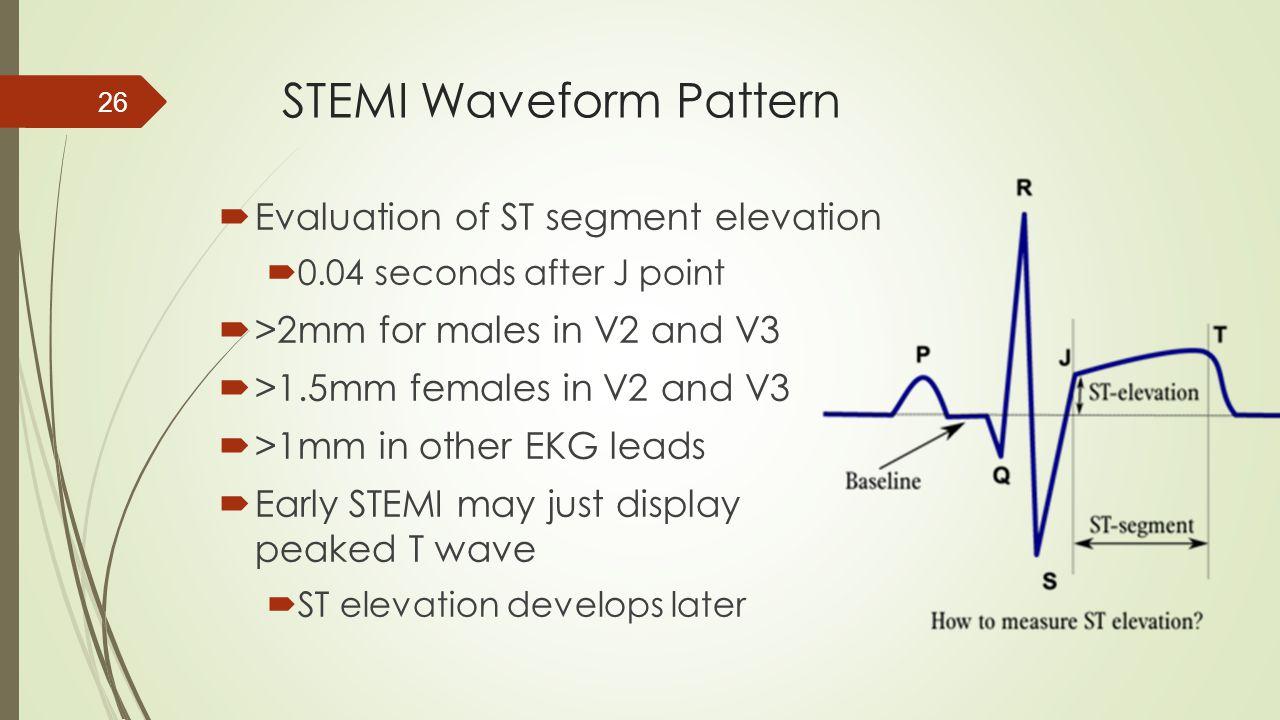 STEMI Waveform Pattern  Evaluation of ST segment elevation  0.04 seconds after J point  >2mm for males in V2 and V3  >1.5mm females in V2 and V3 