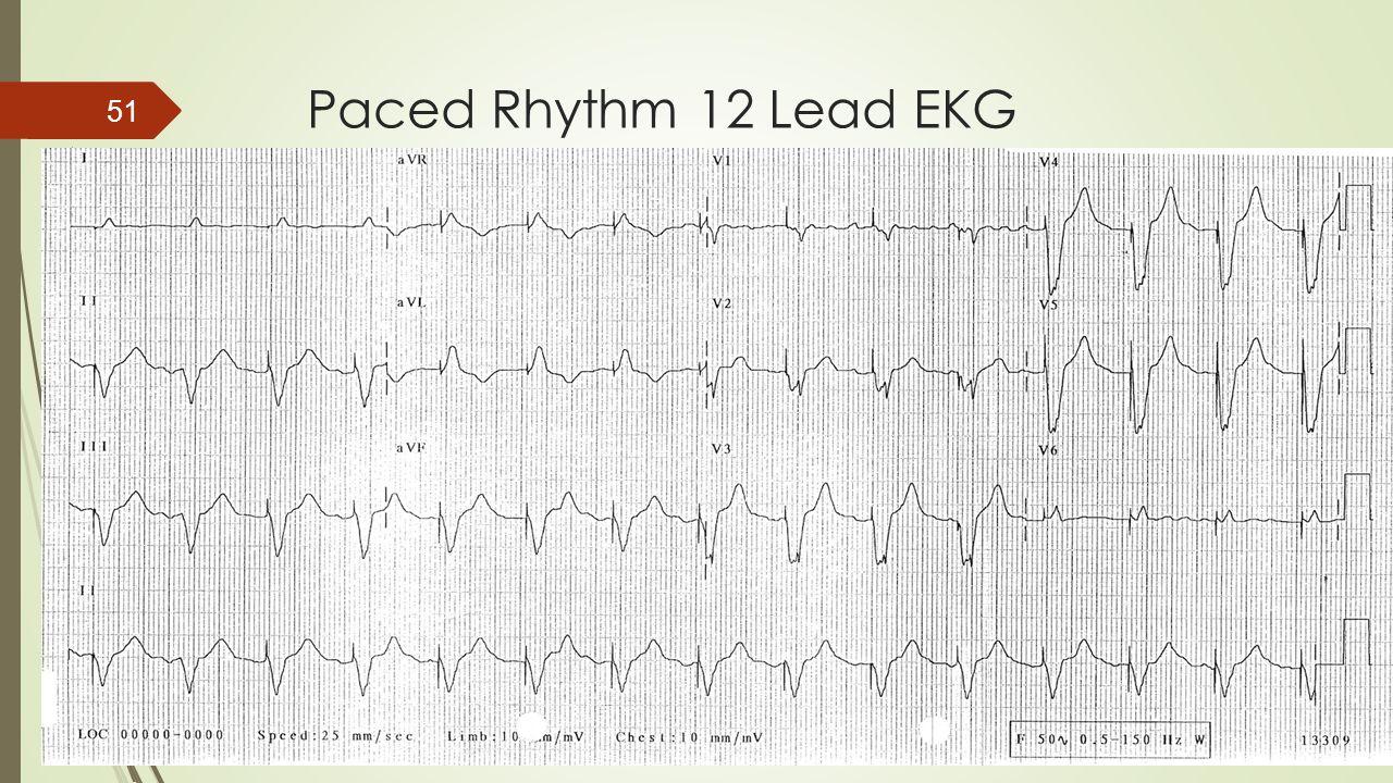 Paced Rhythm 12 Lead EKG 51
