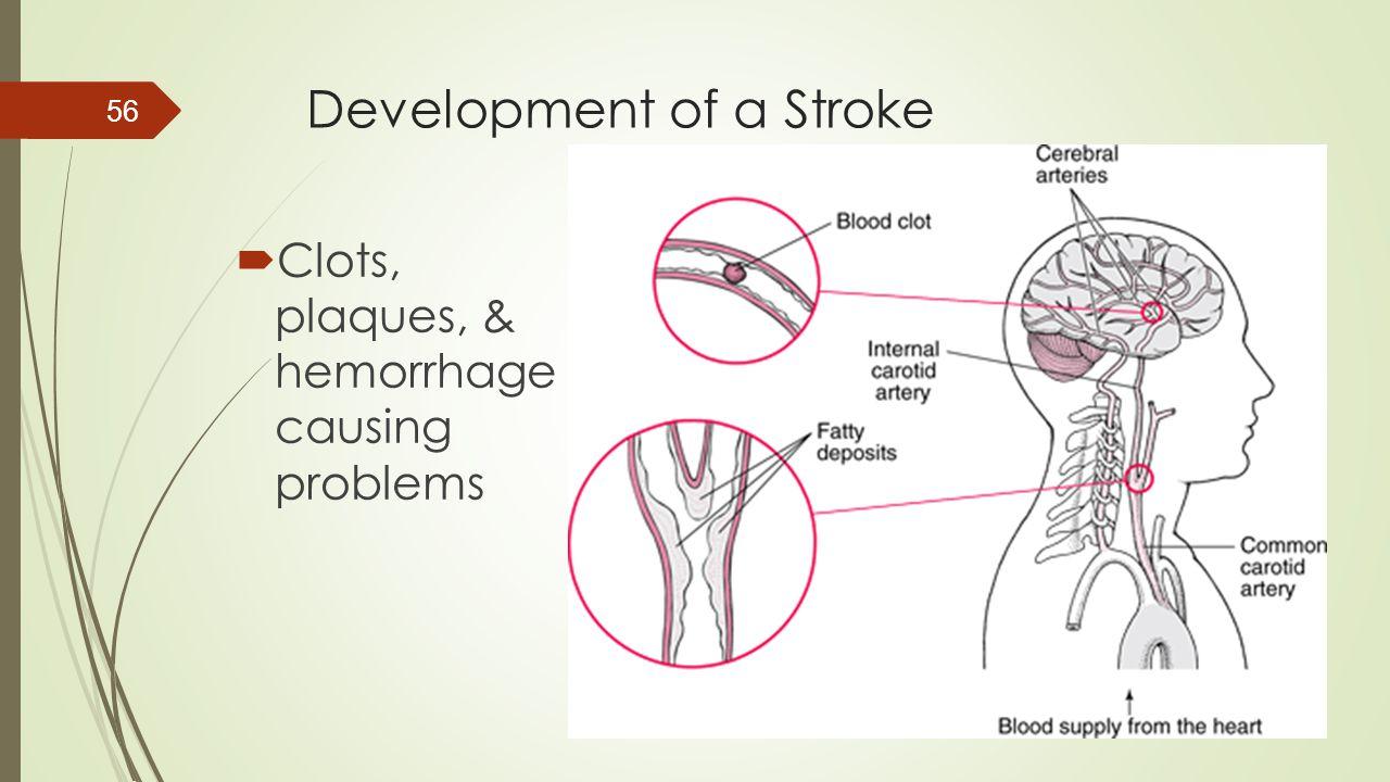 Development of a Stroke  Clots, plaques, & hemorrhage causing problems 56