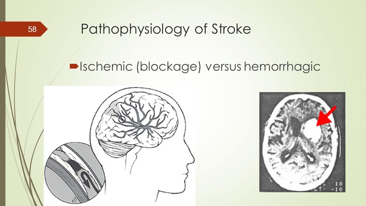 Pathophysiology of Stroke  Ischemic (blockage) versus hemorrhagic 58