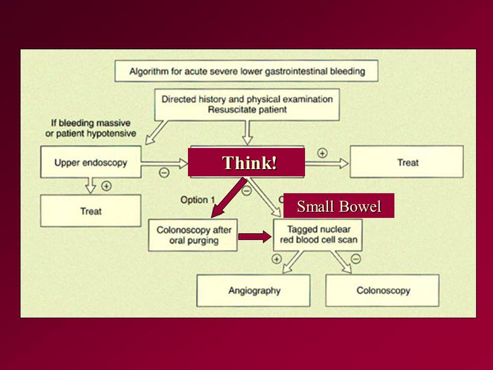 Think! Think! Small Bowel