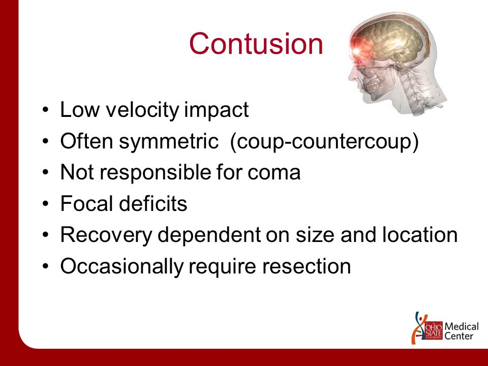Contusion Low velocity impact Often symmetric (coup-countercoup) Not responsible for coma Focal deficits Recovery dependent on size and location Occasionally require resection
