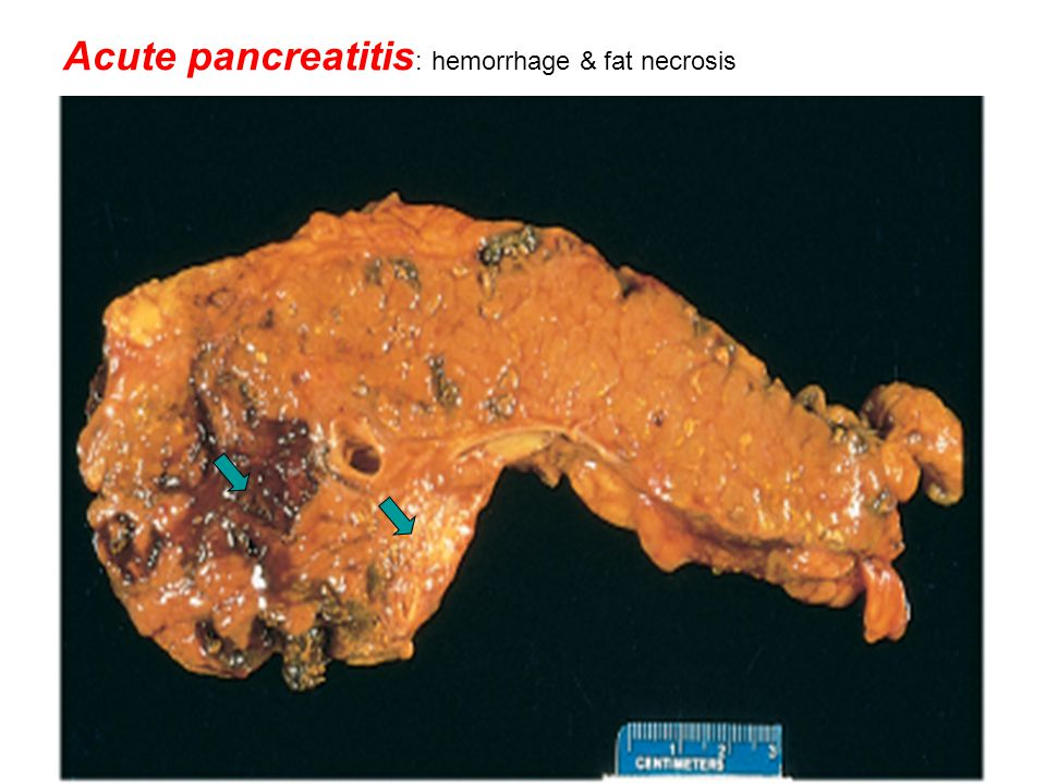 Acute pancreatitis : hemorrhage & fat necrosis