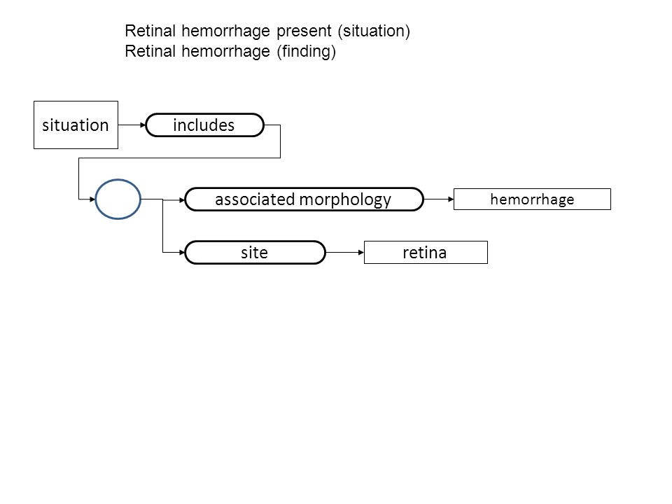 Retinal hemorrhage present (situation) Retinal hemorrhage (finding) hemorrhage site retina situation includes associated morphology