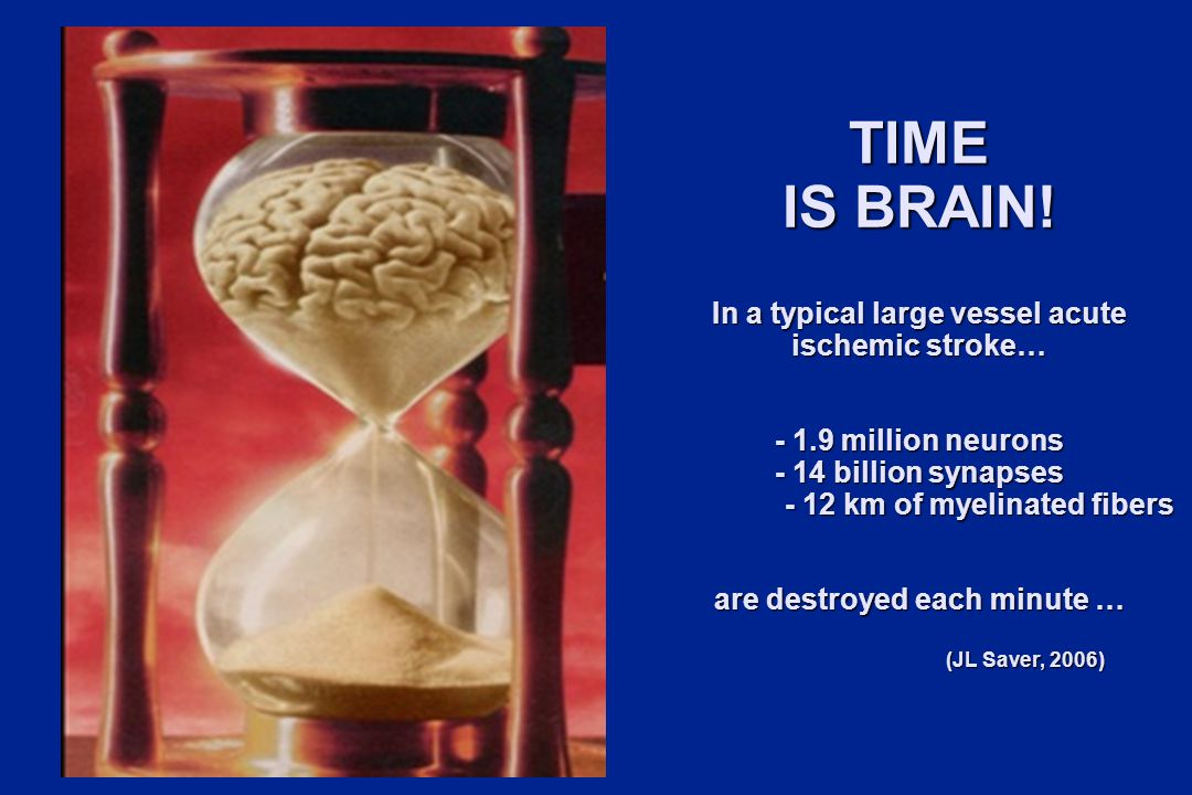 TIME IS BRAIN.