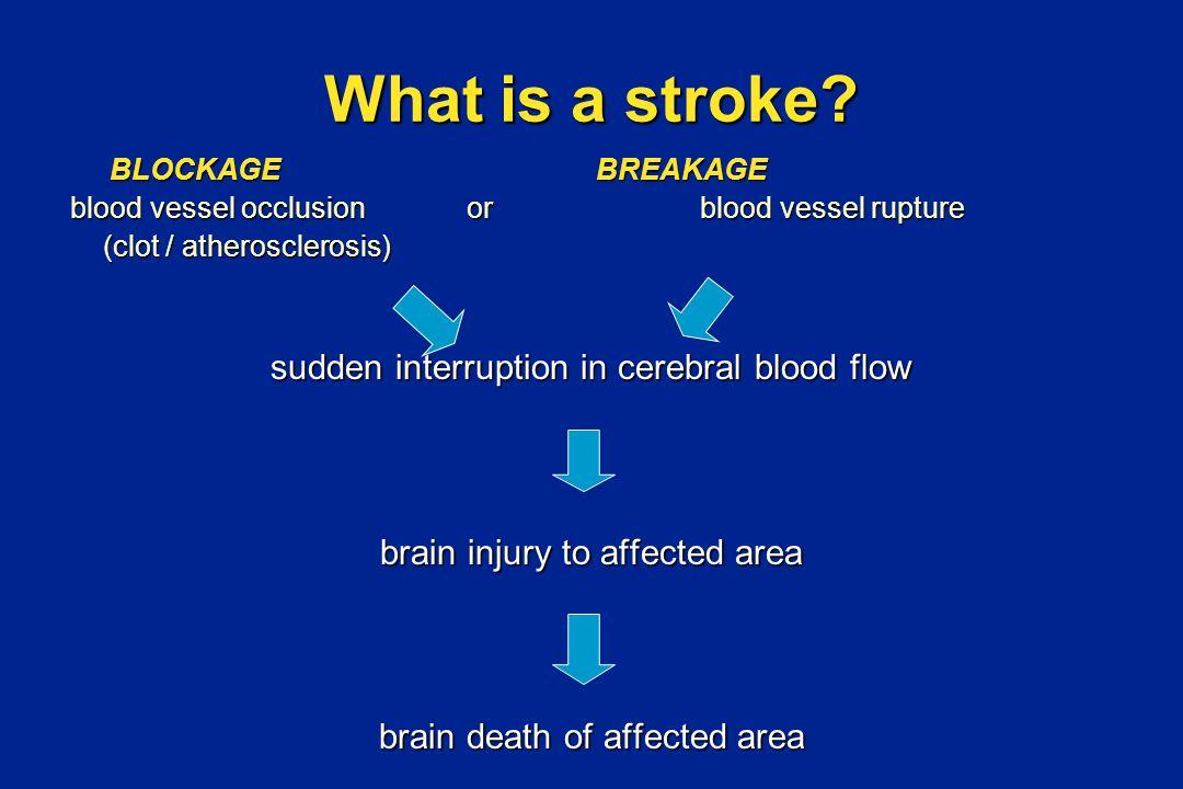 Stroke: Brain Attack Stroke is a brain attack Stroke is an EMERGENCY!