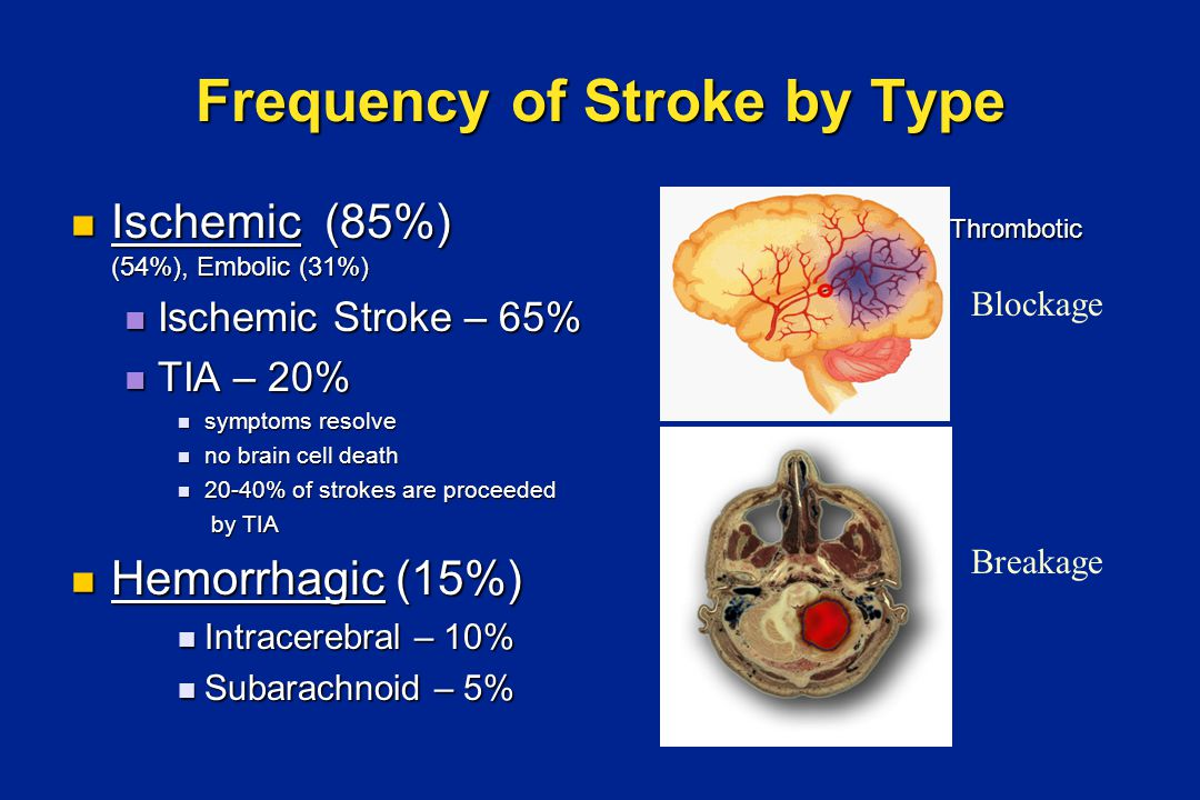 Blood Supply to the Brain PHOTO: Courtesy of National Stroke Association