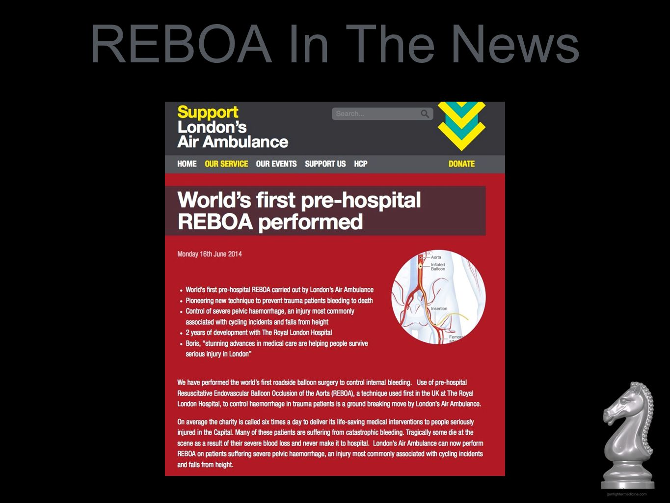 REBOA In The News