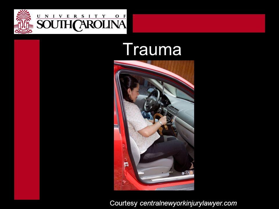 Trauma Courtesy centralnewyorkinjurylawyer.com