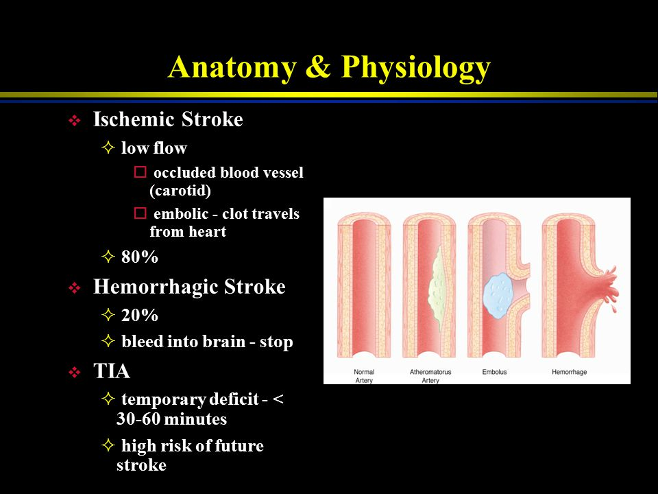 Anatomy & Physiology v Anterior Cerebral Artery  leg > arm - opposite side of ischemia  sensory deficits = motor deficit sites  frontal lobe - impa