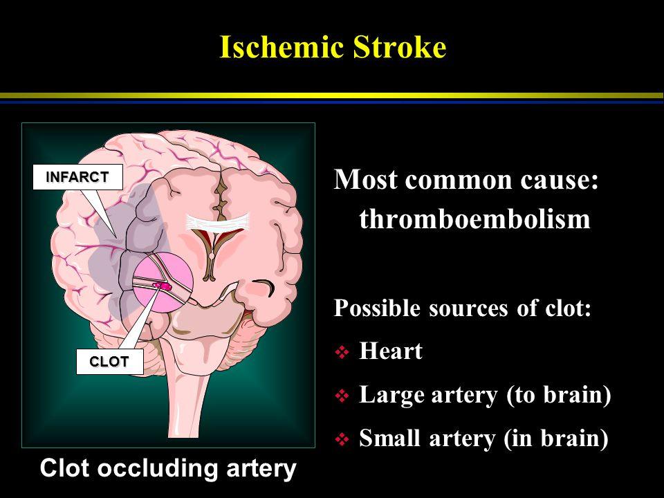 Anatomy & Physiology v Ischemic Stroke  low flow o occluded blood vessel (carotid) o embolic - clot travels from heart  80% v Hemorrhagic Stroke  2