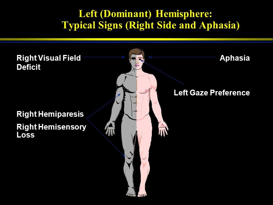 Major Stroke Syndromes LEFT HEMISPHERE RIGHT HEMISPHERE BRAINSTEMCEREBELLUMHEMORRHAGE 1 2 5 4 3 1 2 3 4 5