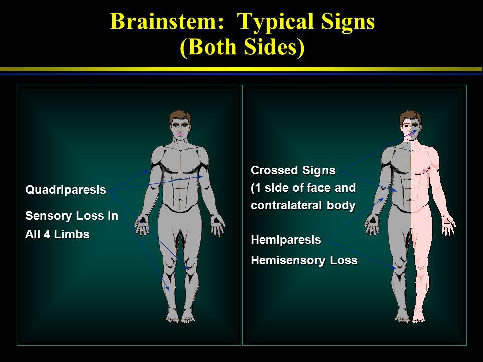 Right (Nondominant) Hemisphere: Typical Signs (Left Side) Right Gaze Preference Left Hemiparesis Left Hemisensory Loss Left Hemi-inattention Left Visu