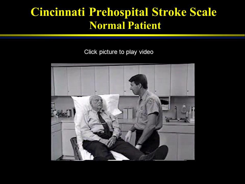 Prehospital Stroke Identification Smith. Prehospital Emerg Care 1998; 2: 170. Kidwell (Los Angelos) Stroke 2000; 31: 71. Kothari (Cincinnati). Ann Eme