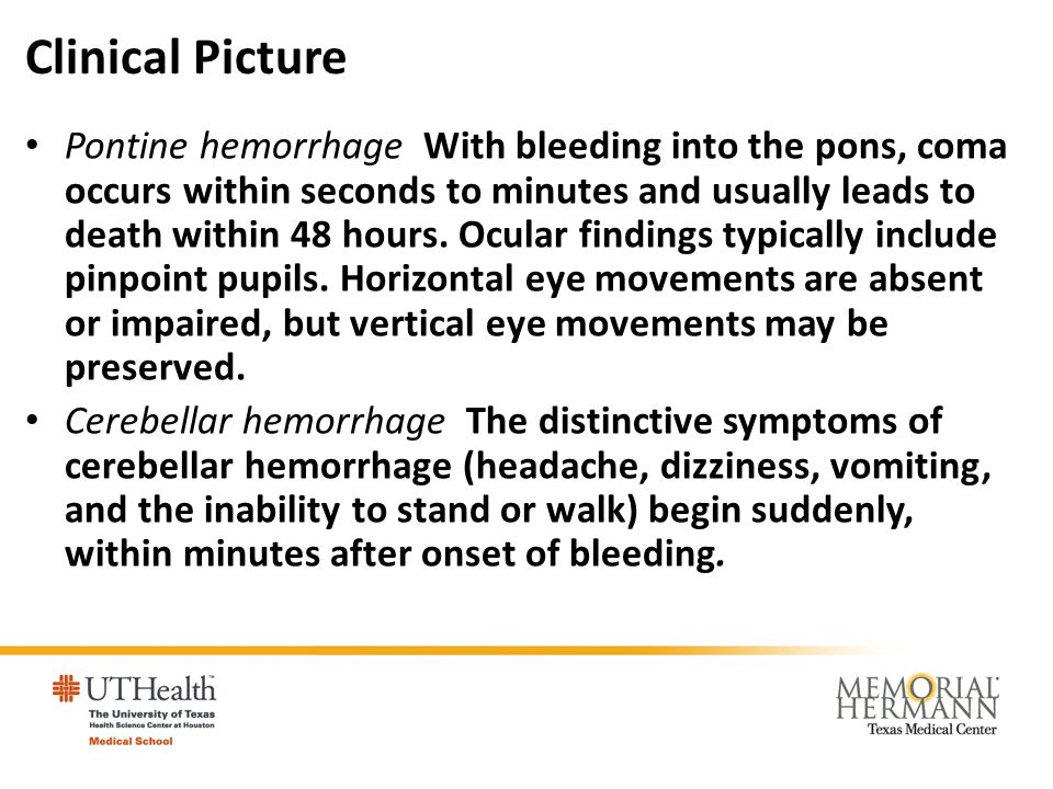 Clinical Picture Pontine hemorrhage With bleeding into the pons, coma occurs within seconds to minutes and usually leads to death within 48 hours. Ocu