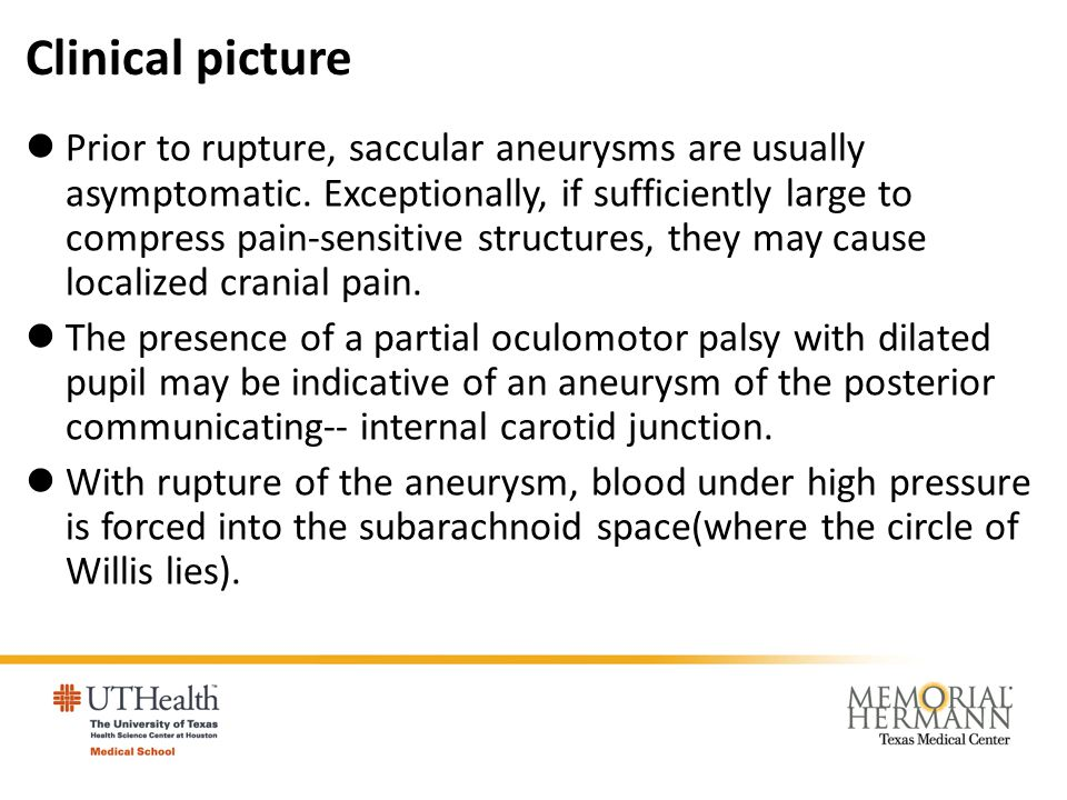 Clinical picture Prior to rupture, saccular aneurysms are usually asymptomatic. Exceptionally, if sufficiently large to compress pain-sensitive struct