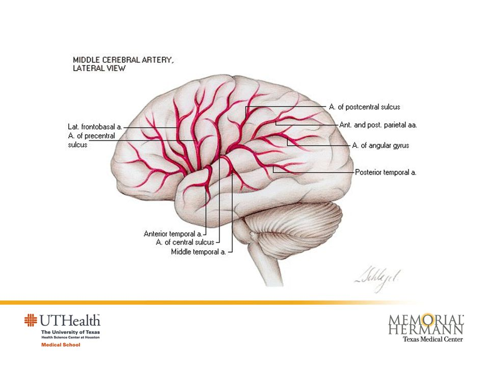 Anatomy and pathology Occlusion leads to sudden severe ischemia in the area of brain tissue supplied by the occluded artery, and recovery depends upon rapid lysis or fragmentation of the occluding material: Reversal of neurological function within minutes or hours gives rise to the clinical picture of a transient ischemic attack.